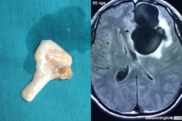 Nang sán được lấy ra khỏi não bệnh nhân và hình ảnh khối u lớn trong não dễ nhầm với các bệnh lý thần kinh