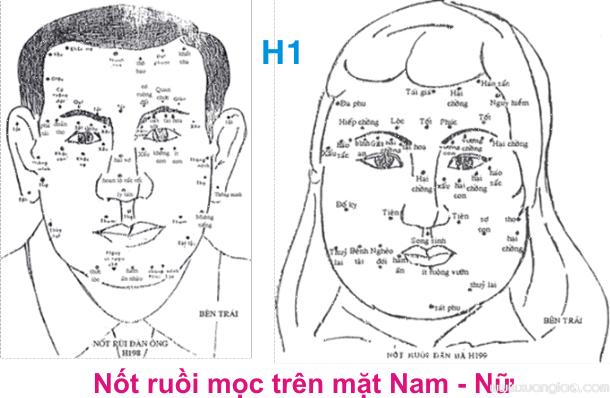 XEM NỐT RUỒI SANG HÈN
