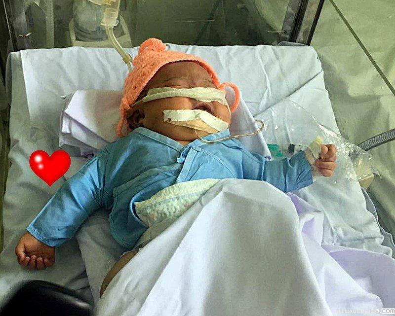 Tay phải bé sơ sinh bị gãy do bác sĩ sơ suất trong quá trình đỡ đẻ (Ảnh: Pháp Luật TP.HCM)