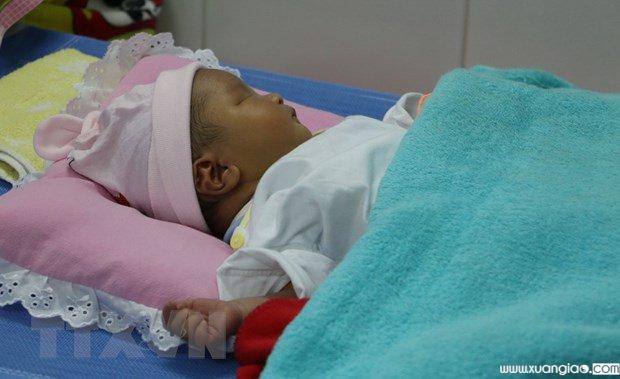 Cháu bé bị gãy chân tại Bệnh viện đa khoa Nhật Tân (Ảnh: TTXVN)