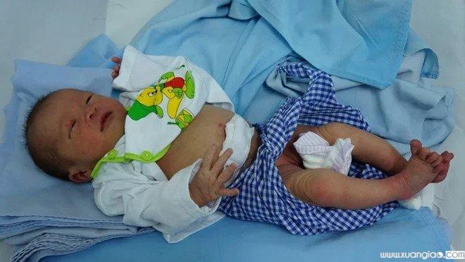 Bé sơ sinh 3 ngày tuổi bị bỏ rơi, kiến cắn toàn thân 5Bé sơ sinh 3 ngày tuổi bị bỏ rơi, kiến cắn toàn thân (Ảnh Tuoitre)