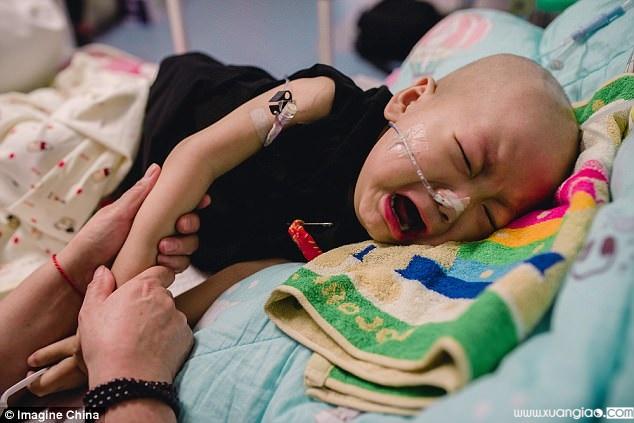 Khi mới 10 tháng tuổi, Haoyang được chẩn đoán mắc phải một căn bệnh hiểm nghèo
