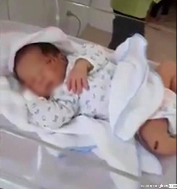 Cháu bé có nhiều vết xước trên mặt, đang được điều trị tại bệnh viện